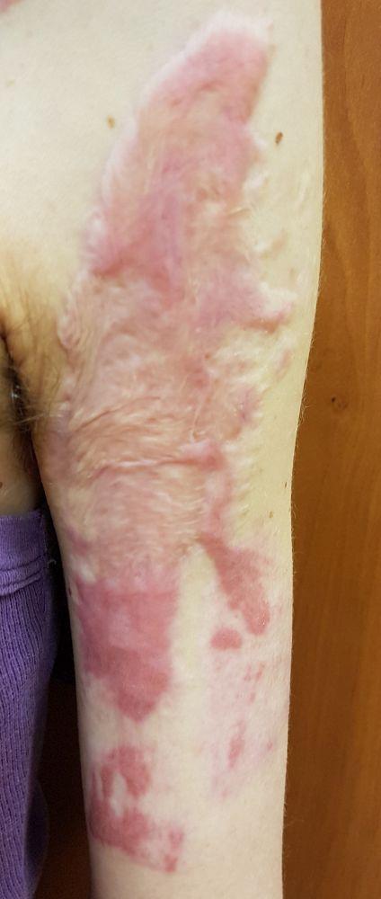 égési sérülés eltüntetése stagnant prostatitis